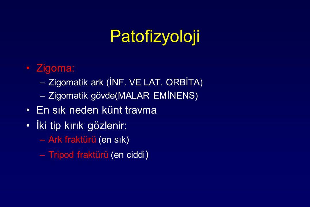 Patofizyoloji Zigoma: En sık neden künt travma İki tip kırık gözlenir: