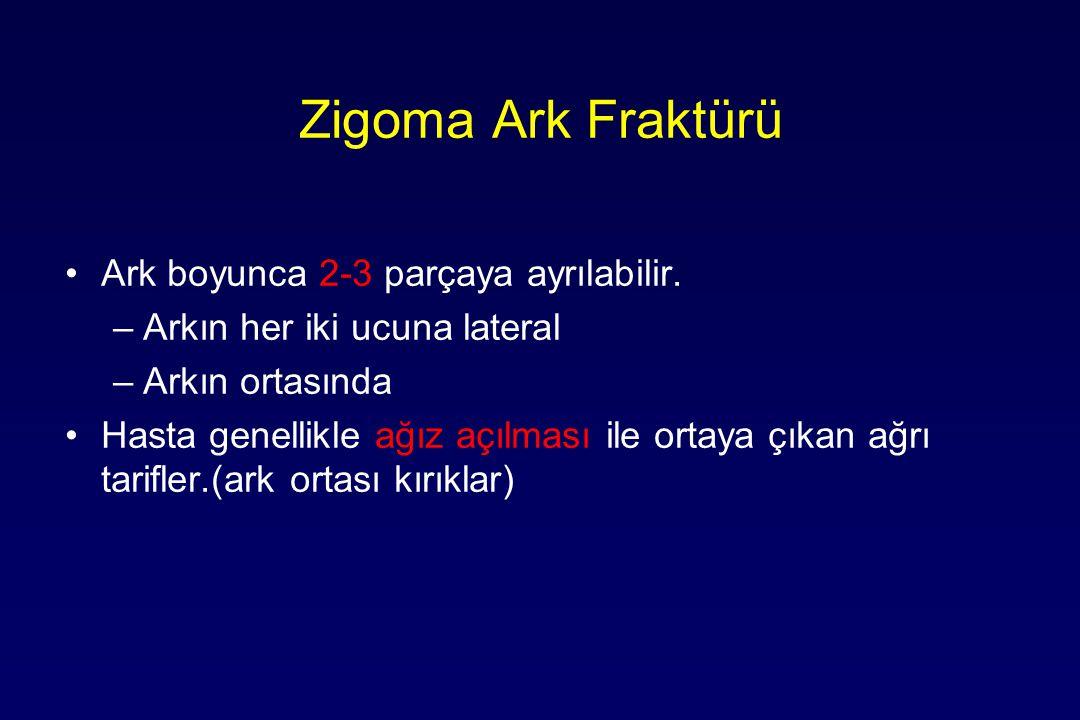 Zigoma Ark Fraktürü Ark boyunca 2-3 parçaya ayrılabilir.