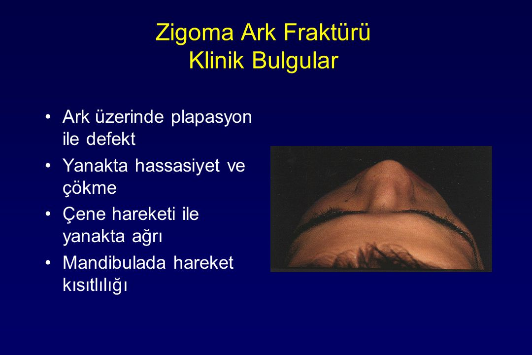 Zigoma Ark Fraktürü Klinik Bulgular