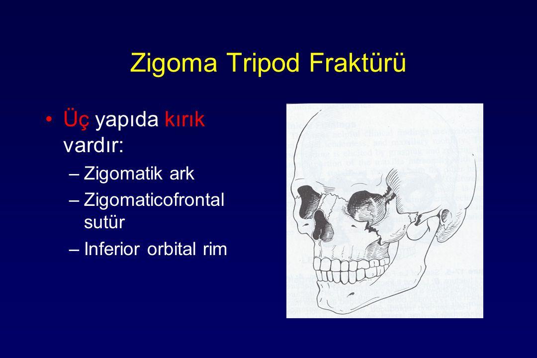 Zigoma Tripod Fraktürü