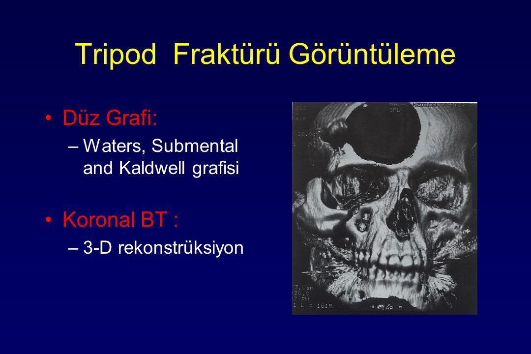 Tripod Fraktürü Görüntüleme