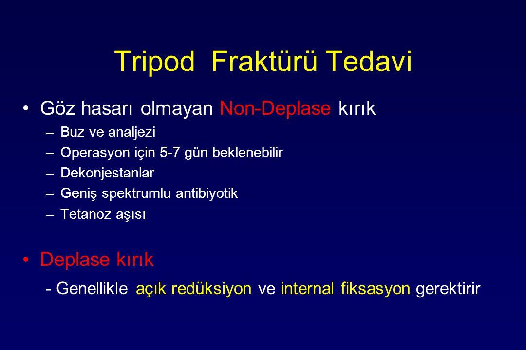 Tripod Fraktürü Tedavi