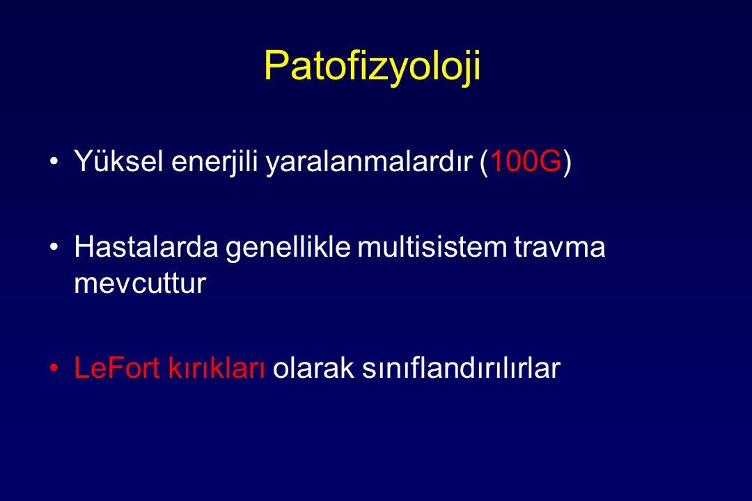 Patofizyoloji Yüksel enerjili yaralanmalardır (100G)