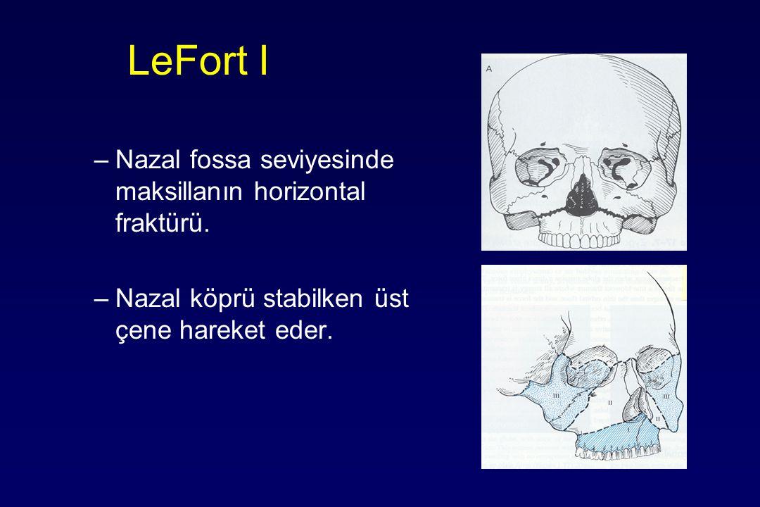 LeFort I Nazal fossa seviyesinde maksillanın horizontal fraktürü.