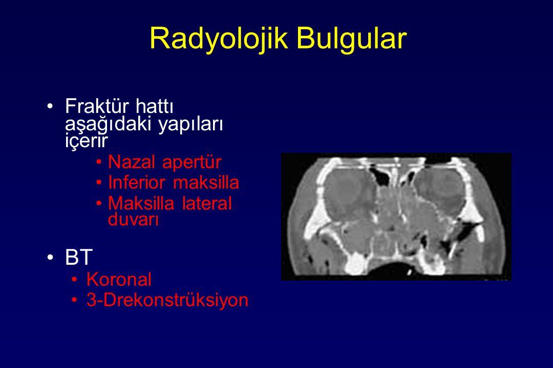 Radyolojik Bulgular BT Fraktür hattı aşağıdaki yapıları içerir