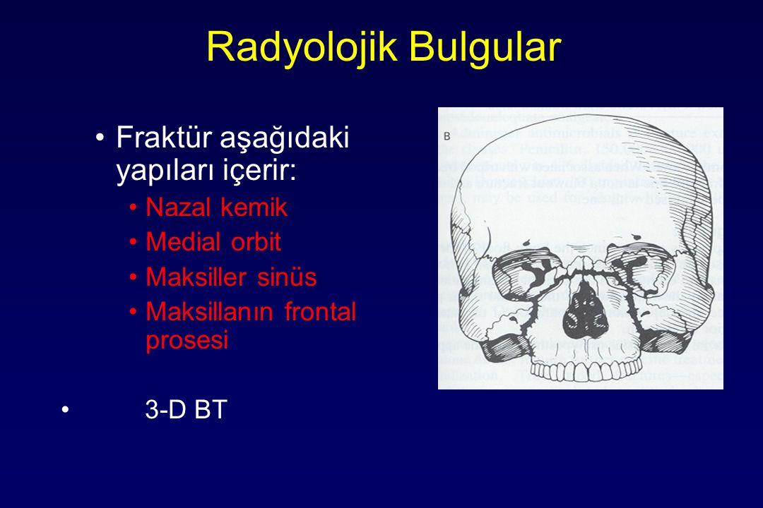 Radyolojik Bulgular Fraktür aşağıdaki yapıları içerir: Nazal kemik