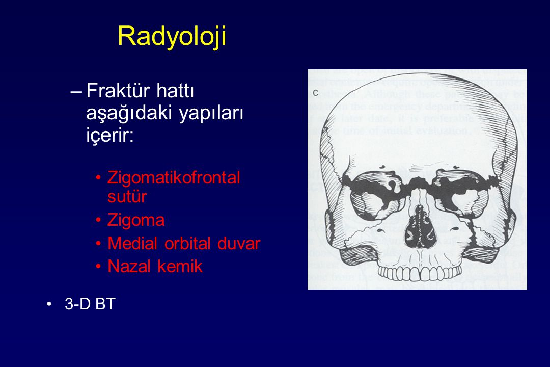 Radyoloji Fraktür hattı aşağıdaki yapıları içerir: