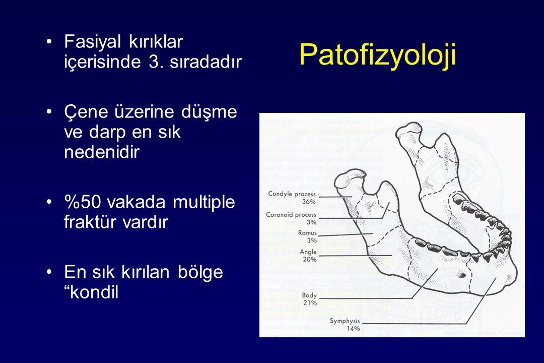Patofizyoloji Fasiyal kırıklar içerisinde 3. sıradadır