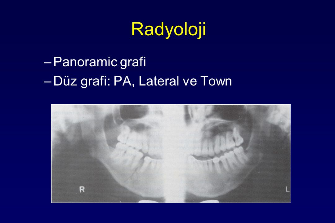 Radyoloji Panoramic grafi Düz grafi: PA, Lateral ve Town