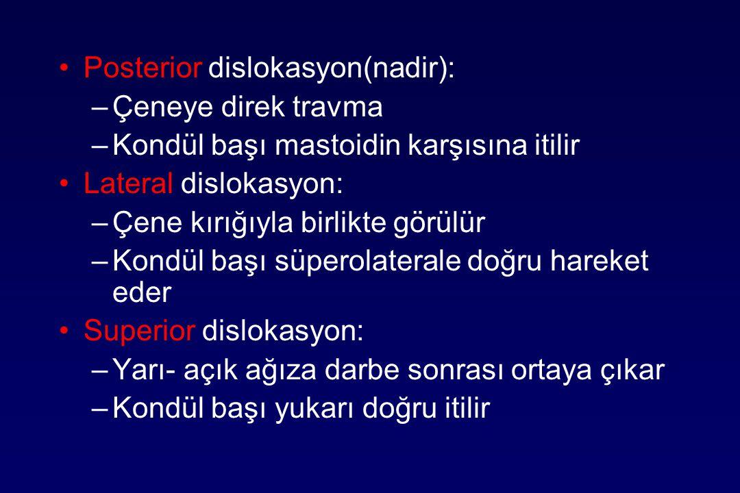 Posterior dislokasyon(nadir):
