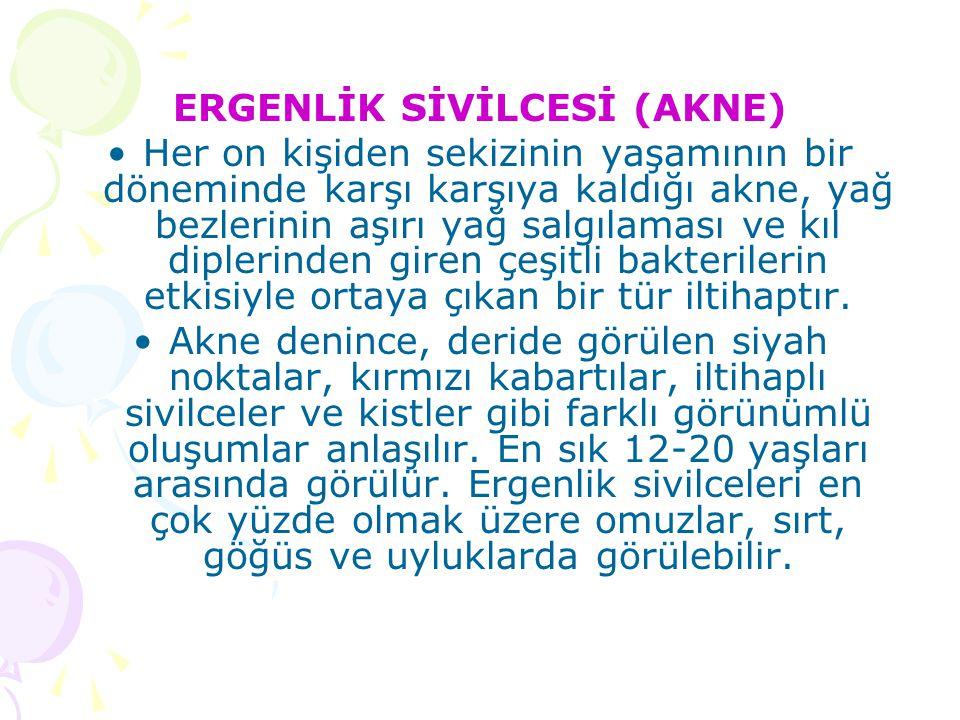 ERGENLİK SİVİLCESİ (AKNE)