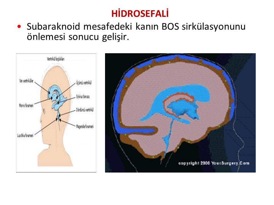 HİDROSEFALİ Subaraknoid mesafedeki kanın BOS sirkülasyonunu önlemesi sonucu gelişir.