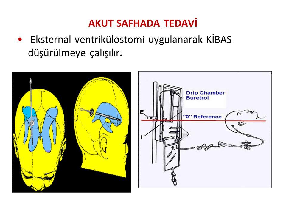 AKUT SAFHADA TEDAVİ Eksternal ventrikülostomi uygulanarak KİBAS düşürülmeye çalışılır.