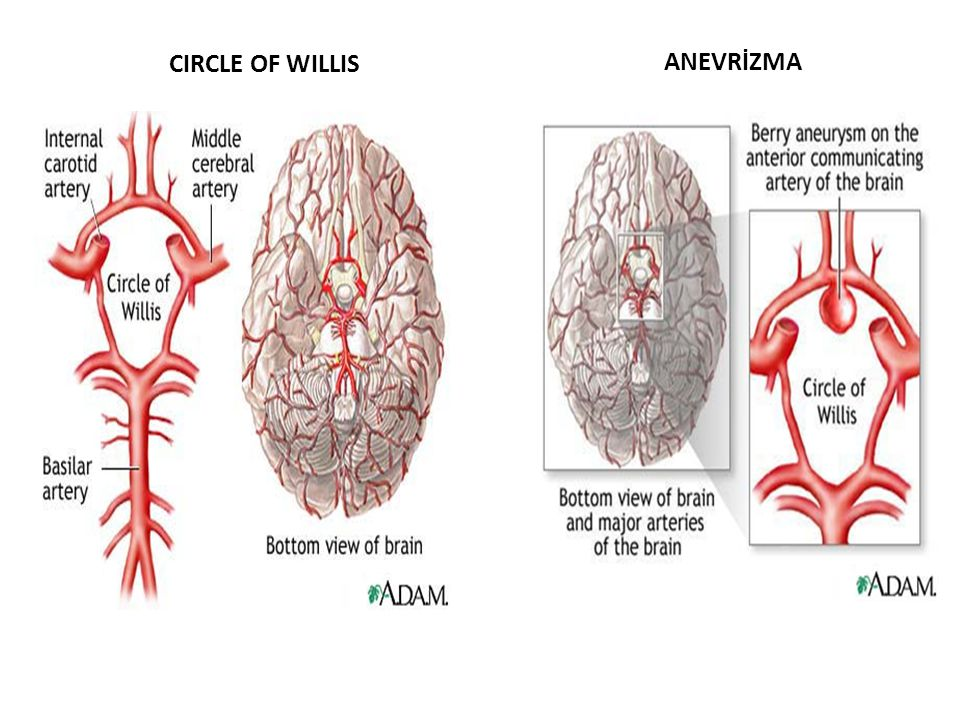 CIRCLE OF WILLIS ANEVRİZMA