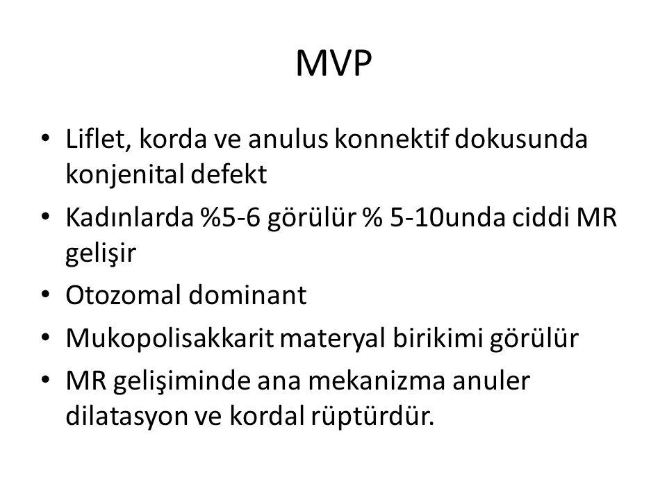 MVP Liflet, korda ve anulus konnektif dokusunda konjenital defekt