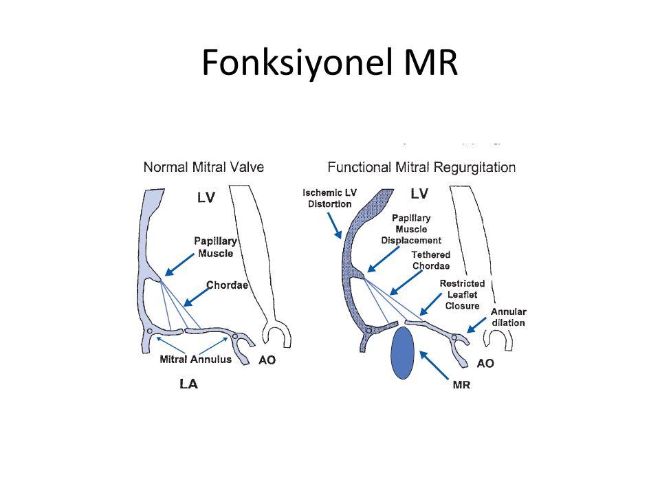 Fonksiyonel MR