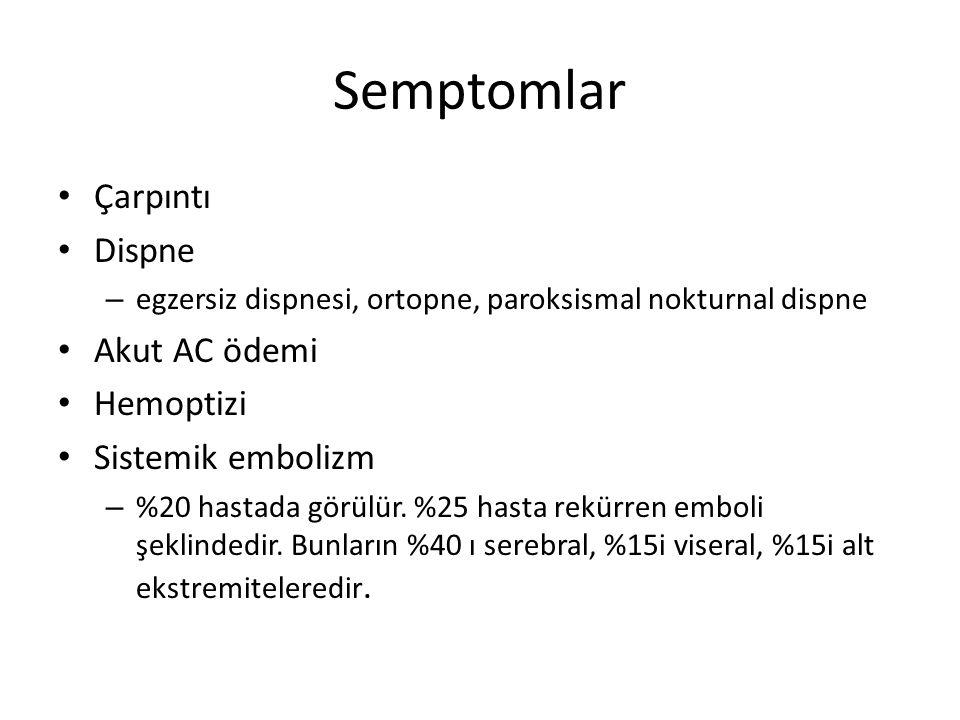 Semptomlar Çarpıntı Dispne Akut AC ödemi Hemoptizi Sistemik embolizm