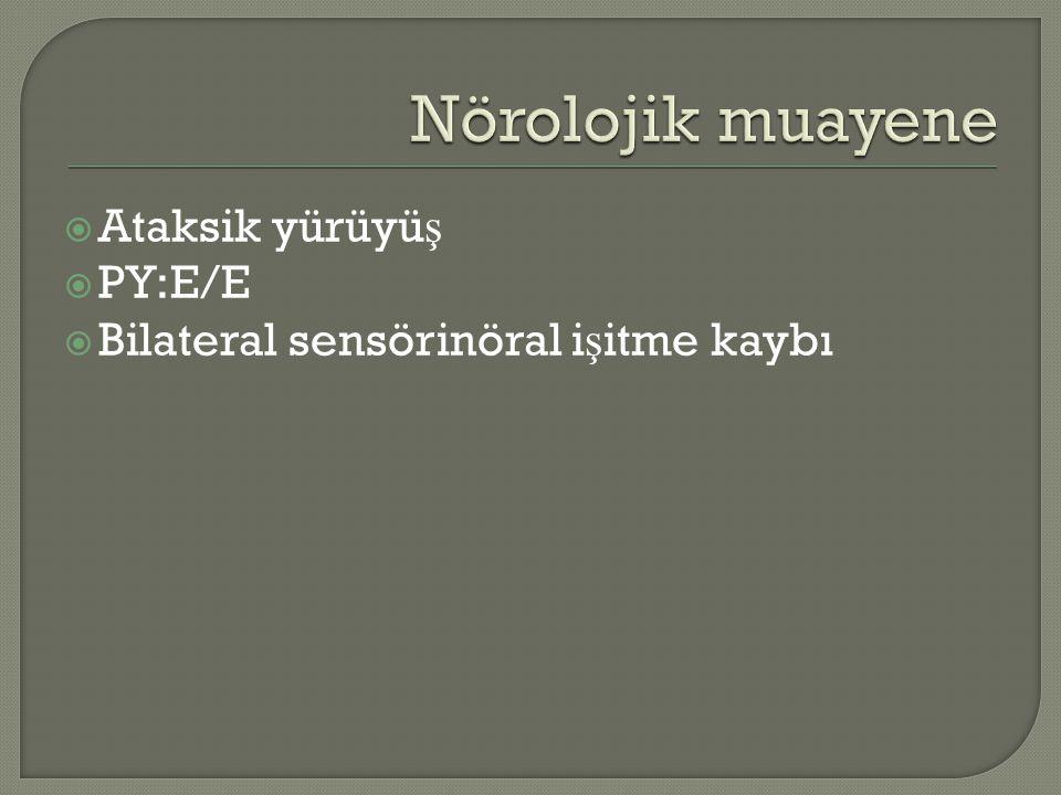 Nörolojik muayene Ataksik yürüyüş PY:E/E
