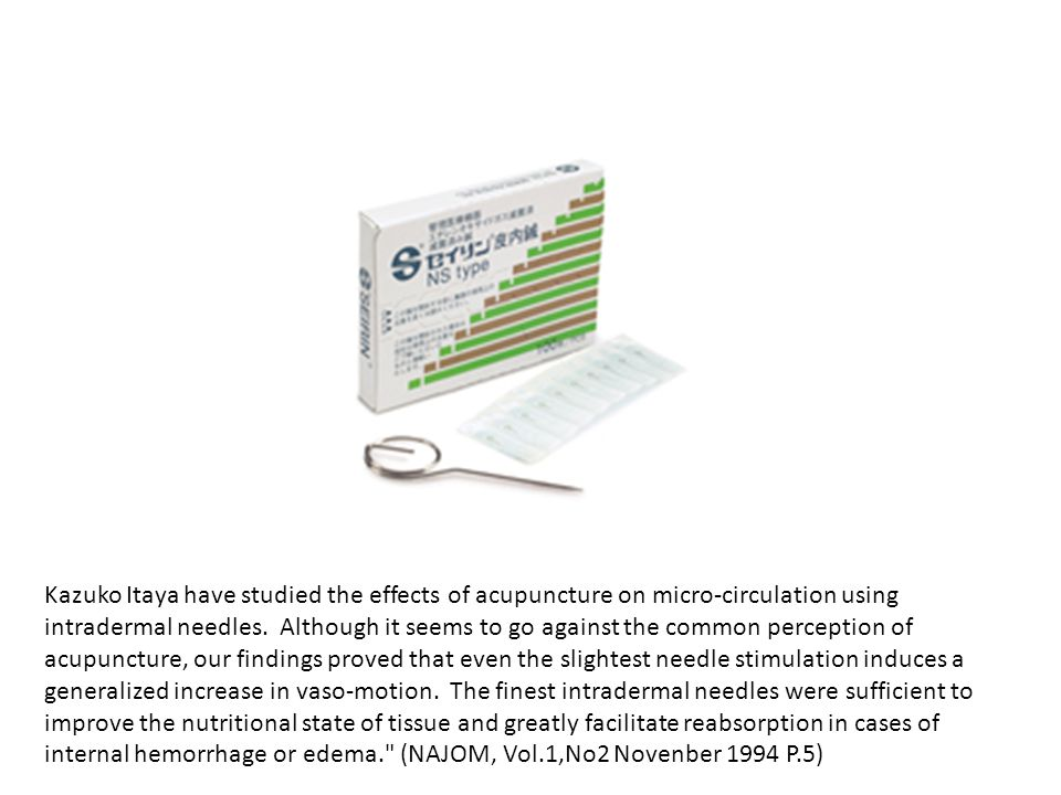 Kazuko Itaya have studied the effects of acupuncture on micro-circulation using intradermal needles. Although it seems to go against the common perception of acupuncture, our findings proved that even the slightest needle stimulation induces a generalized increase in vaso-motion. The finest intradermal needles were sufficient to improve the nutritional state of tissue and greatly facilitate reabsorption in cases of internal hemorrhage or edema. (NAJOM, Vol.1,No2 Novenber 1994 P.5)