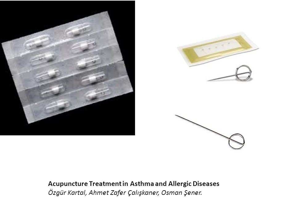 Acupuncture Treatment in Asthma and Allergic Diseases
