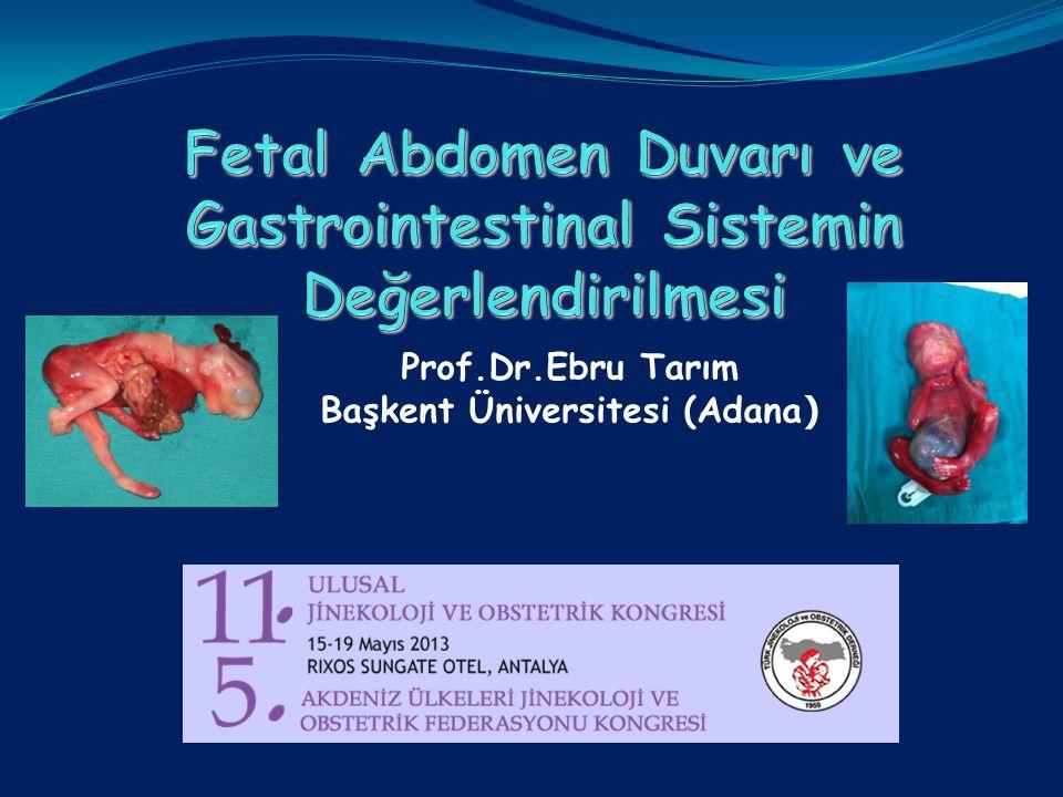Fetal Abdomen Duvarı ve Gastrointestinal Sistemin Değerlendirilmesi