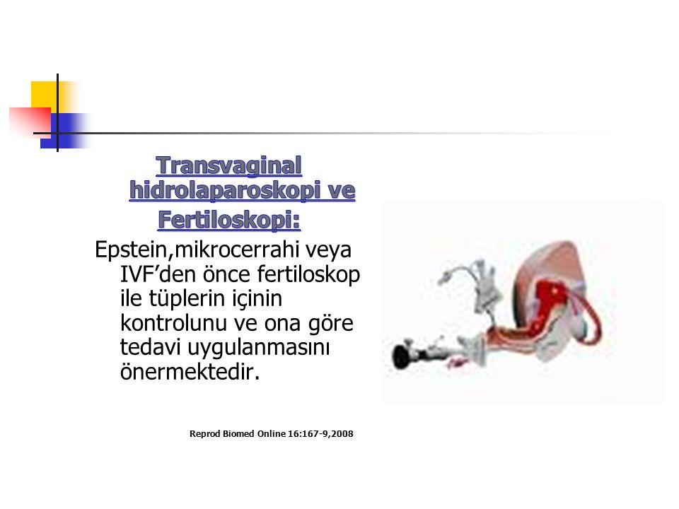 Transvaginal hidrolaparoskopi ve