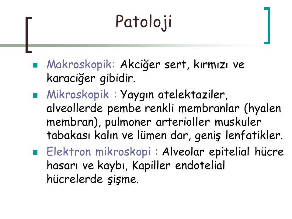 Patoloji Makroskopik: Akciğer sert, kırmızı ve karaciğer gibidir.