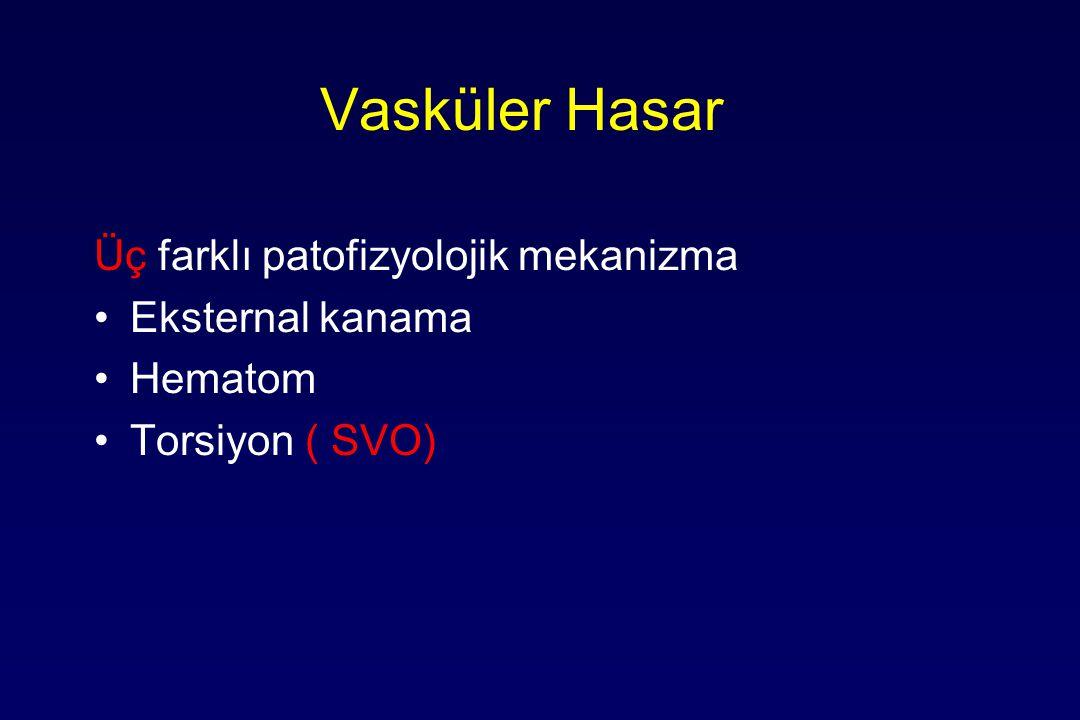 Vasküler Hasar Üç farklı patofizyolojik mekanizma Eksternal kanama