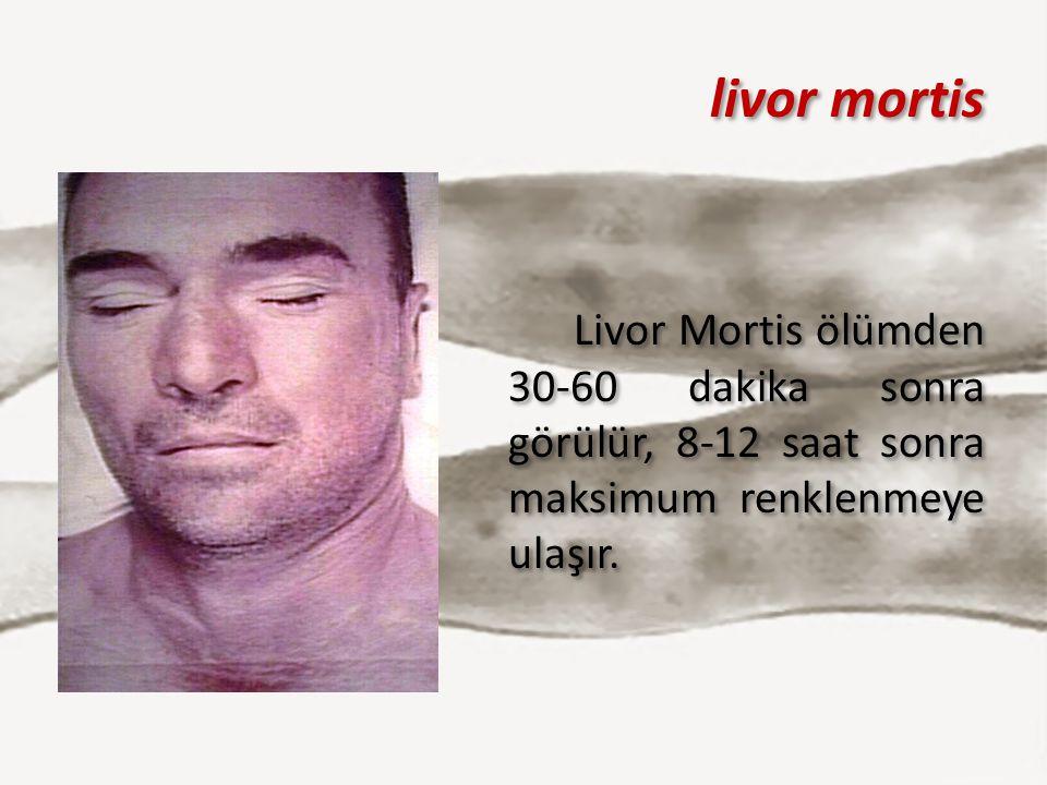 livor mortis Livor Mortis ölümden 30-60 dakika sonra görülür, 8-12 saat sonra maksimum renklenmeye ulaşır.