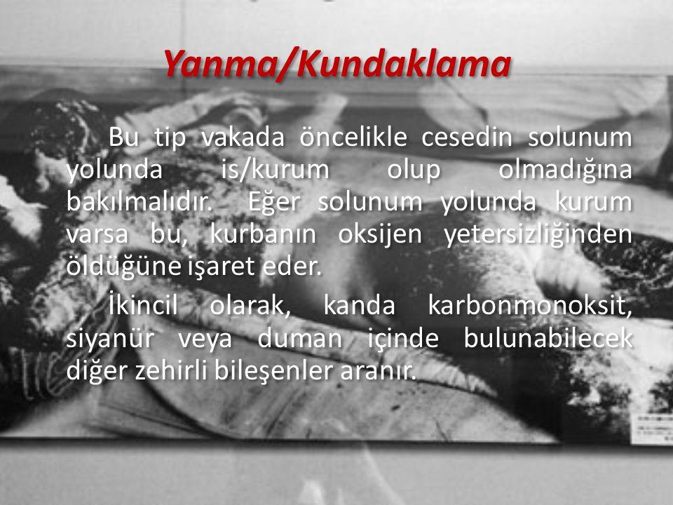 Yanma/Kundaklama