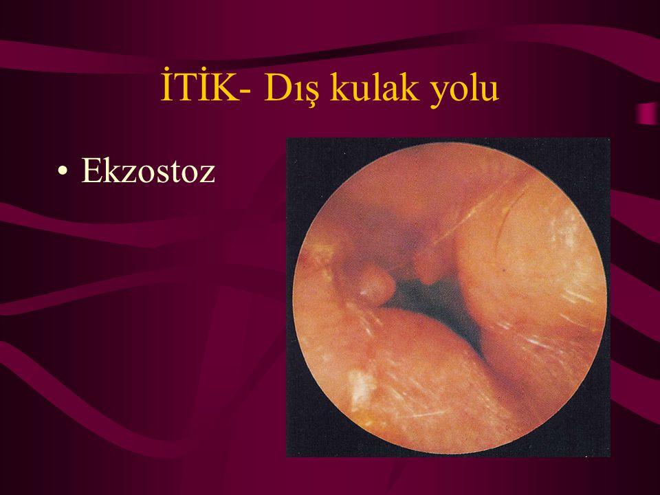 İTİK- Dış kulak yolu Ekzostoz