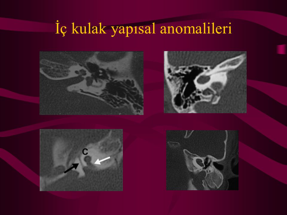 İç kulak yapısal anomalileri