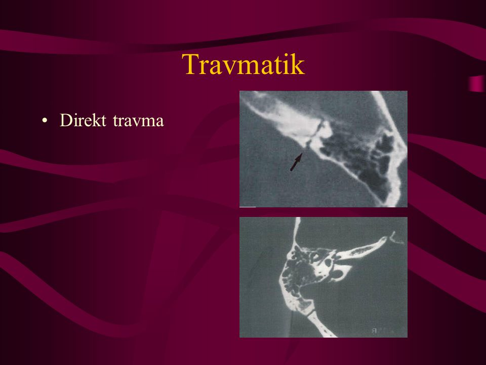 Travmatik Direkt travma