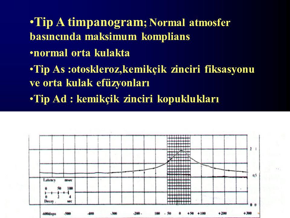 Tip A timpanogram; Normal atmosfer basıncında maksimum komplians