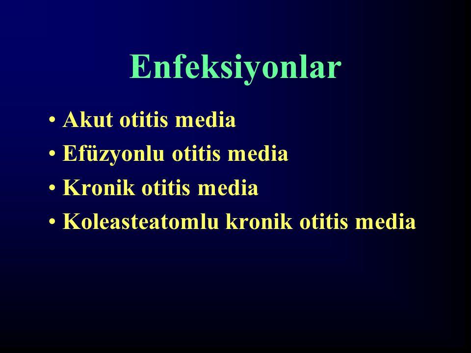 Enfeksiyonlar Akut otitis media Efüzyonlu otitis media