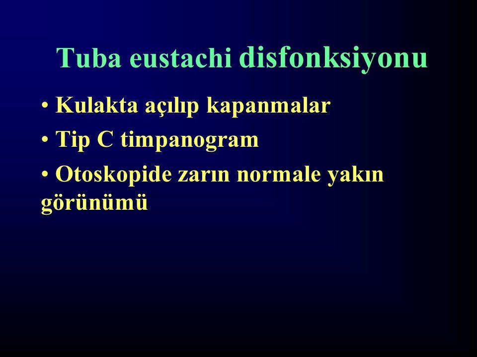 Tuba eustachi disfonksiyonu