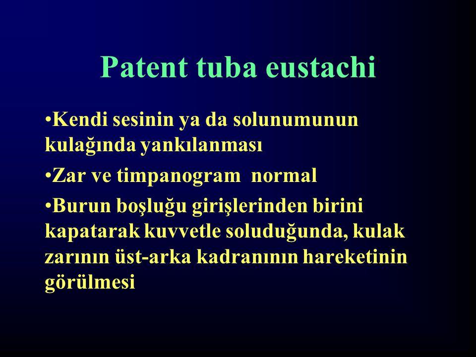 Patent tuba eustachi Kendi sesinin ya da solunumunun kulağında yankılanması. Zar ve timpanogram normal.