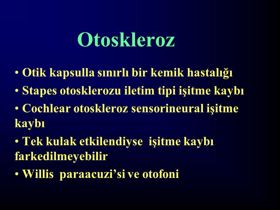 Otoskleroz Otik kapsulla sınırlı bir kemik hastalığı
