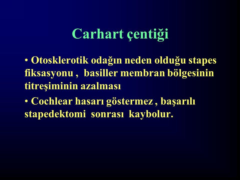 Carhart çentiği Otosklerotik odağın neden olduğu stapes fiksasyonu , basiller membran bölgesinin titreşiminin azalması.