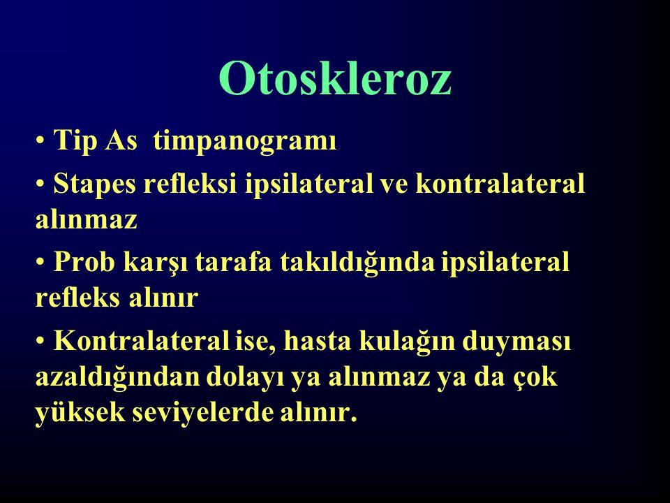 Otoskleroz Tip As timpanogramı