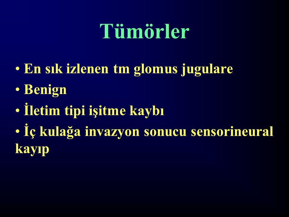Tümörler En sık izlenen tm glomus jugulare Benign