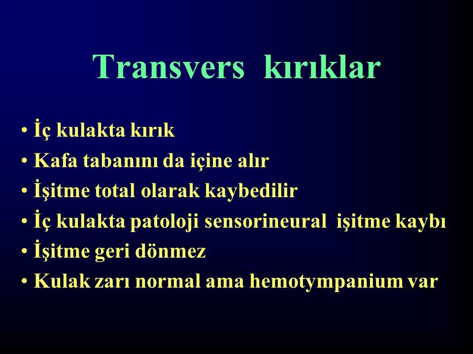 Transvers kırıklar İç kulakta kırık Kafa tabanını da içine alır