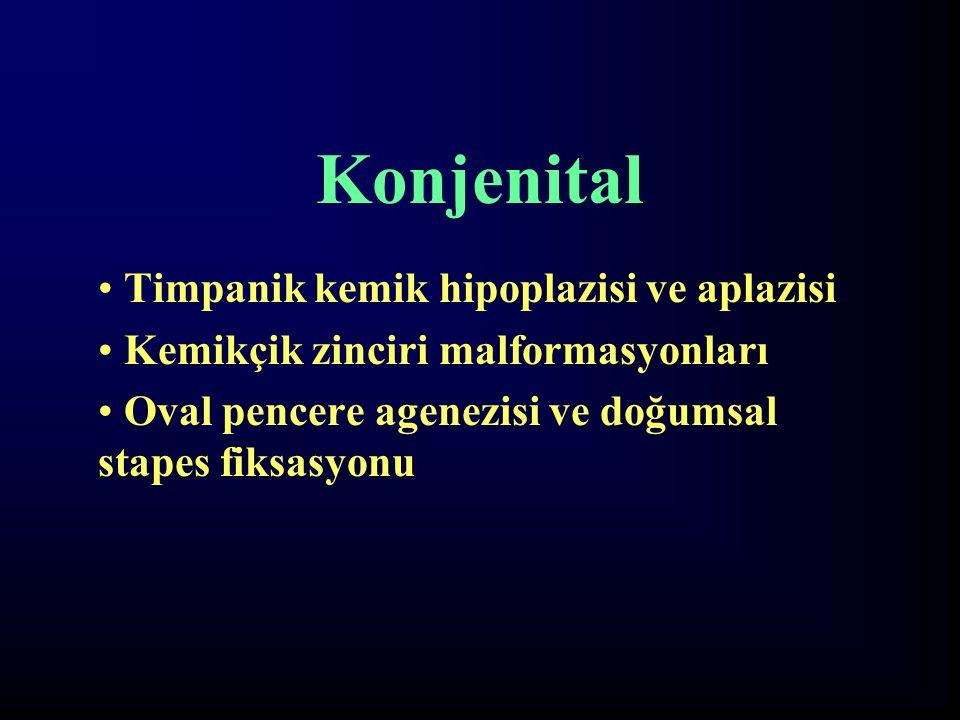 Konjenital Timpanik kemik hipoplazisi ve aplazisi