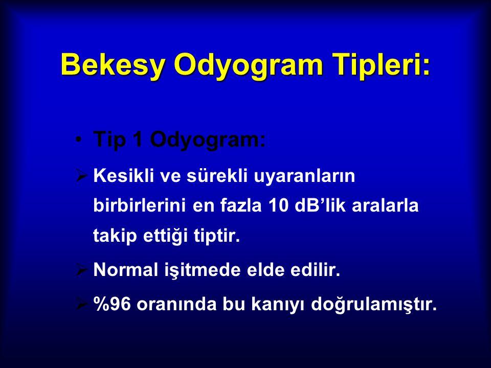 Bekesy Odyogram Tipleri:
