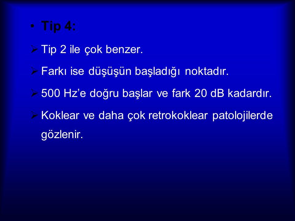Tip 4: Tip 2 ile çok benzer. Farkı ise düşüşün başladığı noktadır.