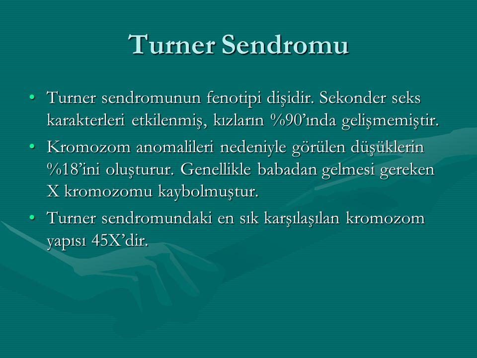 Turner Sendromu Turner sendromunun fenotipi dişidir. Sekonder seks karakterleri etkilenmiş, kızların %90'ında gelişmemiştir.