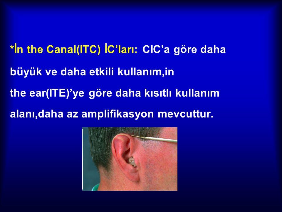 *İn the Canal(ITC) İC'ları: CIC'a göre daha