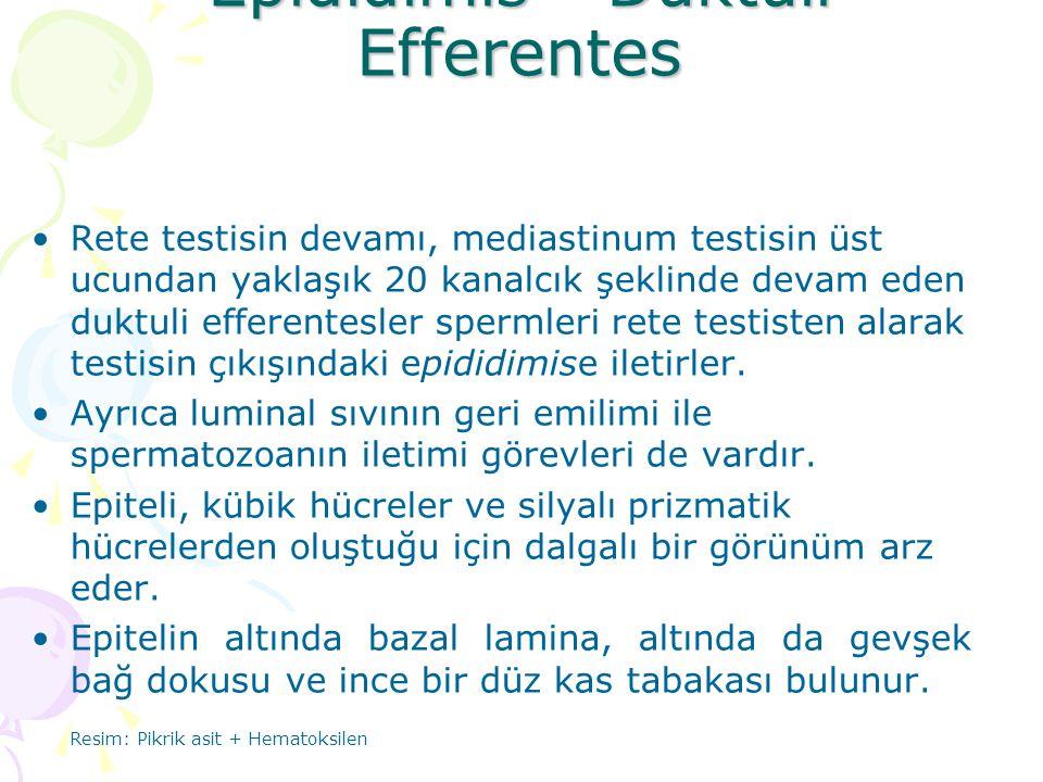 Epididimis - Duktuli Efferentes