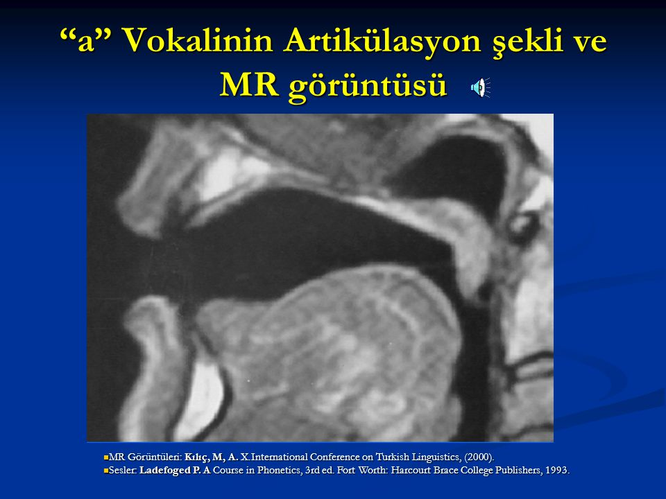 a Vokalinin Artikülasyon şekli ve MR görüntüsü