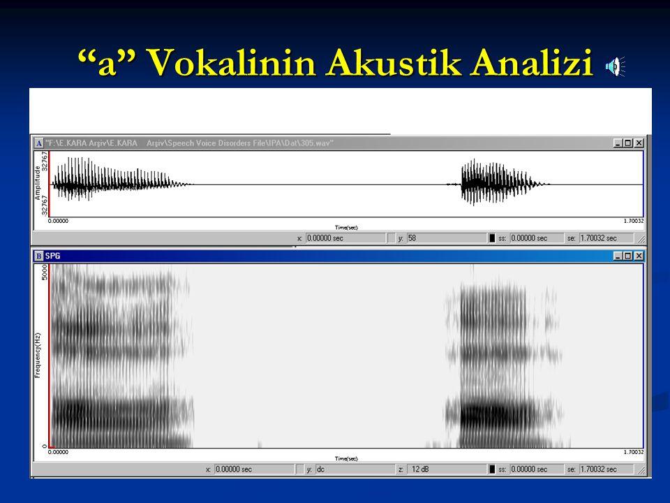 a Vokalinin Akustik Analizi
